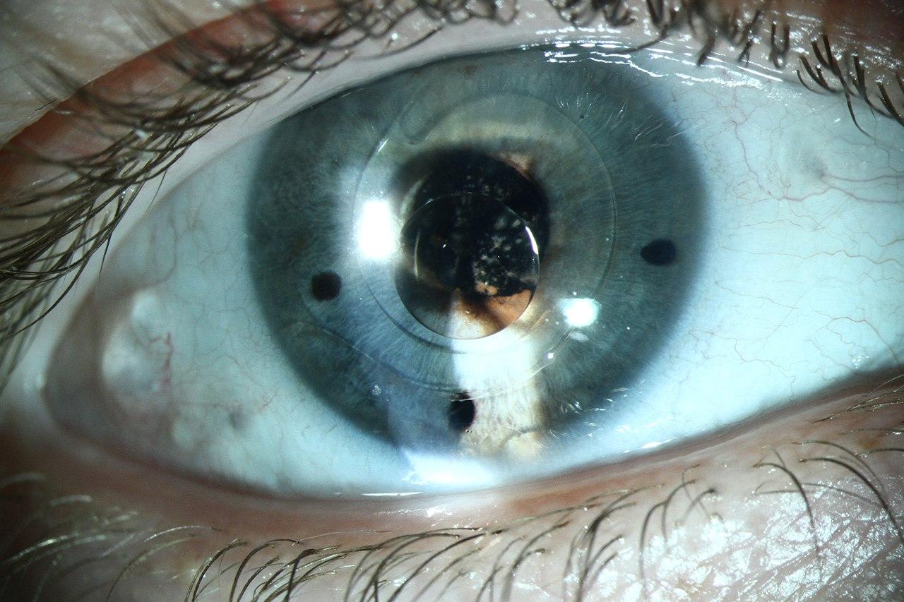 Премиум-коррекция зрения